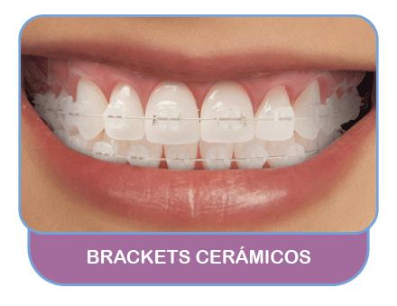 Brackets-Cerámicos