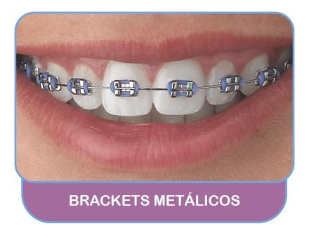 Brackets-metalicos