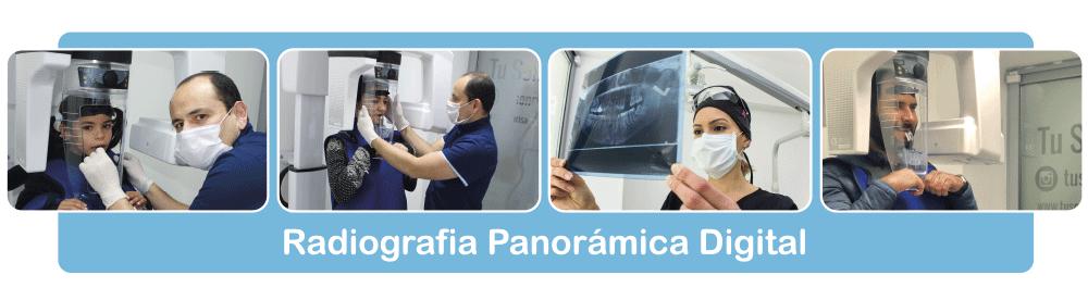 Radiografia-Panoramica-Digital