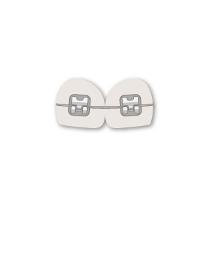 Brackets-Autoligados
